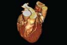 CT Heart Angiogram Scan